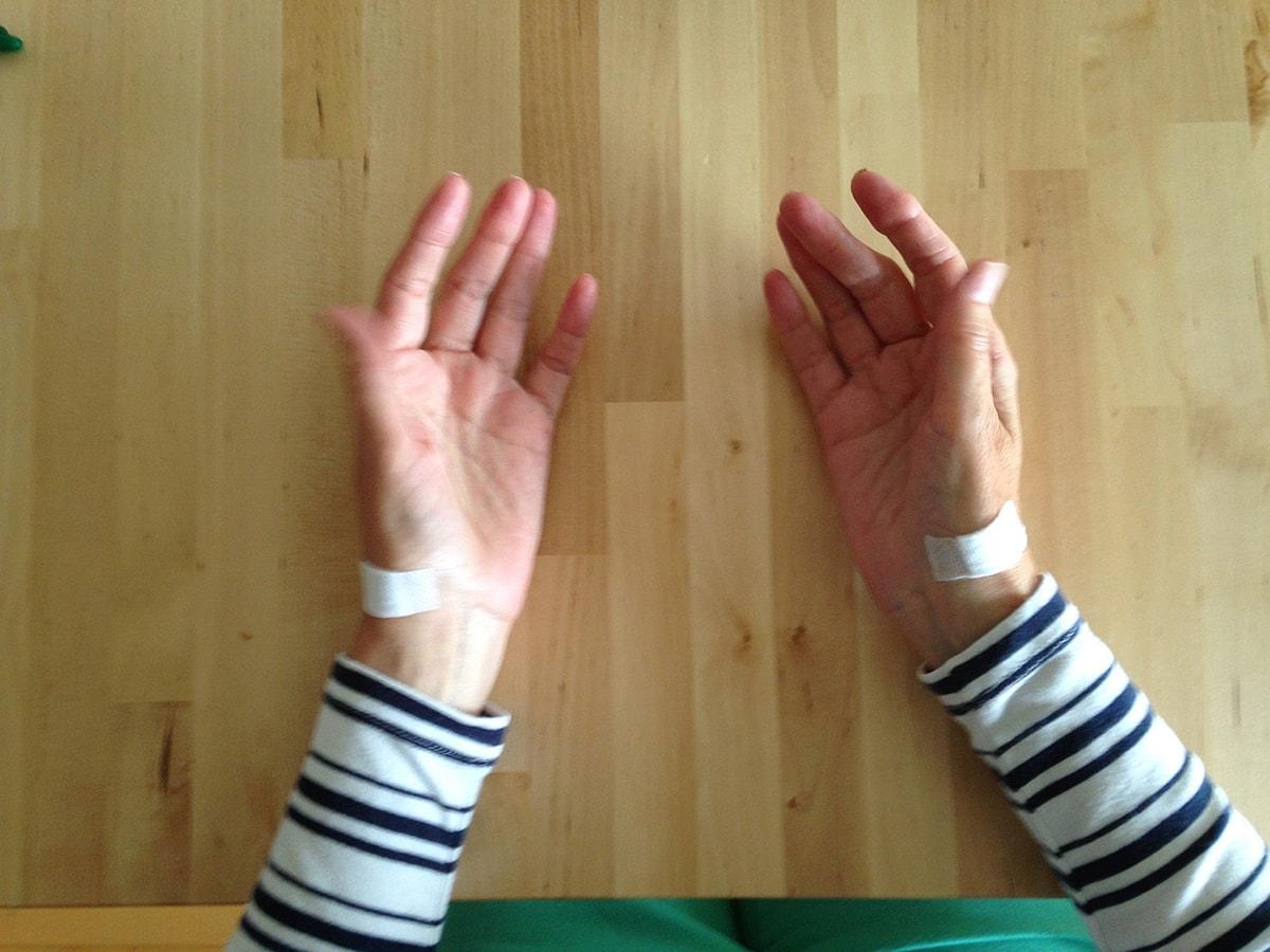 Rhizarthrose behandeln mit Infiltrationen