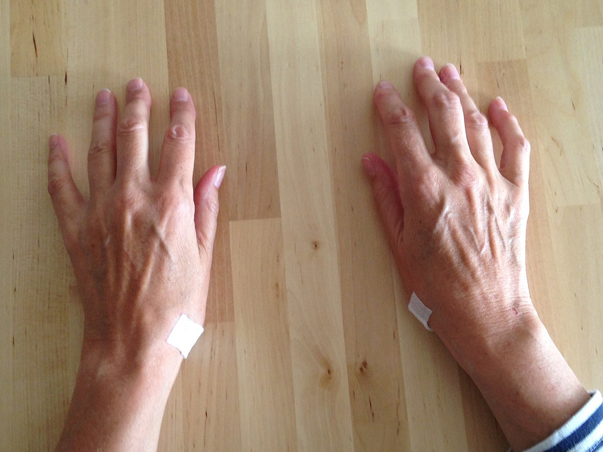 Arthrose Schmerzen behandeln