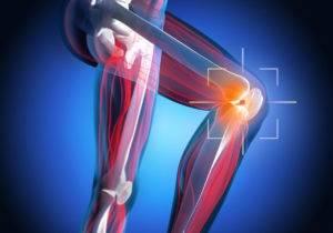Arthrofibrose am Knie behandeln und heilen