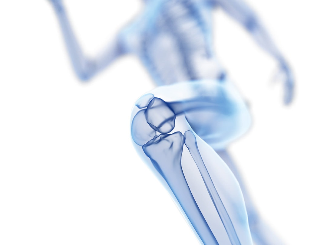 Arthrose Programm GLA:D