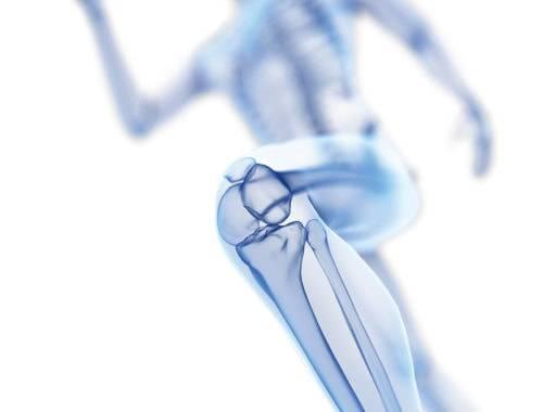 Arthrose Bewegungsprogramm