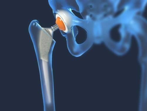 Arthrose App nach Gelenkersatz in Hüfte und Knie