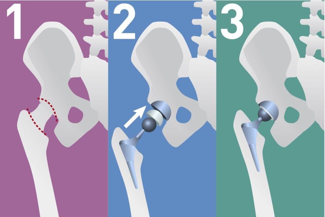 Revisions OP Wechsel Knie- und Hüftprothesen
